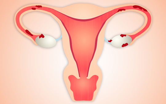 Pharmacologic Options for Management of the Chronic Pelvic Pain of Endometriosis