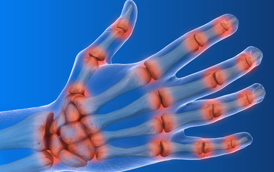 Rheumatoid Arthritis in Primary Care