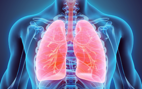 Optimizing Outcomes in Moderate to Severe Asthma