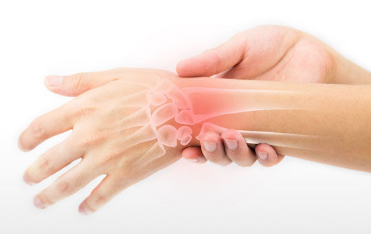 Rheumatoid Arthritis: Treating to Target in Primary Care