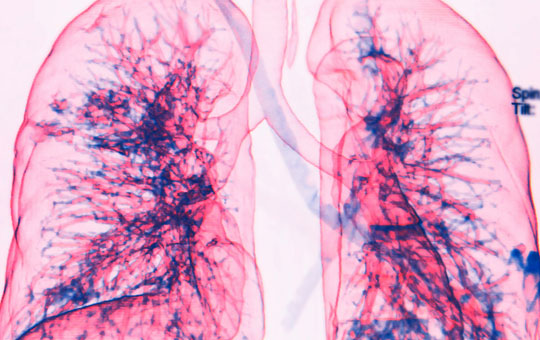 COPD Management in Primary Care: An Expert Roundtable