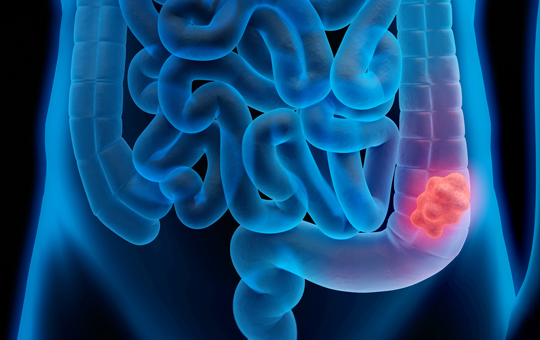 Applying Recent Advances in Metastatic Colorectal Cancer to Improving Patient Care