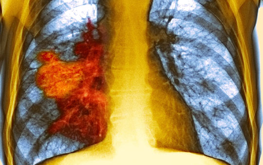 First-Line Treatment of Non–Small-Cell Lung Cancer When There Is No Actionable Molecular Biomarker