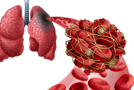 Navigating the Diagnosis and Management of Venous Thromboembolism