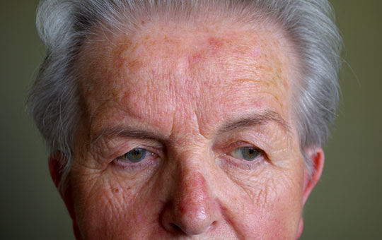 New and Emerging Options for Rosacea