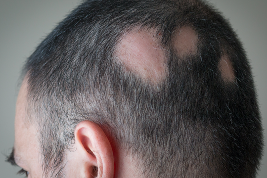 Determining the Cause of Hair Loss
