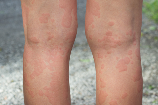 Diagnosis and Management of Chronic Idiopathic Urticaria