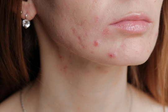 Spironolactone Use in Adult Female Acne