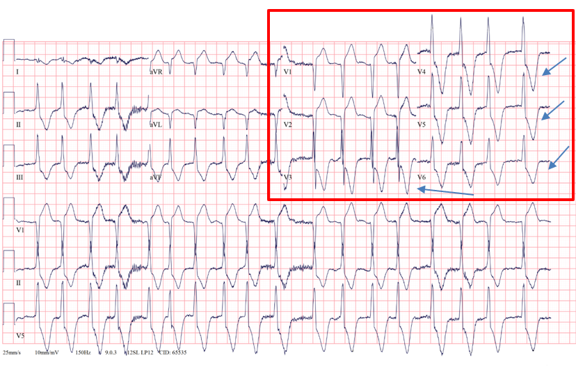 Deep T wave inversions in V3-V6 in a patient with ApHCM
