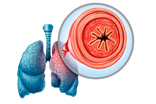 <a href='/the-exchange/procalcitonin-levels-in-the-management-of-copd-exacerbations'>Procalcitonin Levels in the Management of COPD Exacerbations</a>