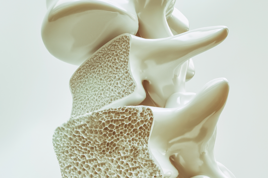 <a href='/the-exchange/t2dm-and-osteoporosis-where-do-we-stand-in-2019-'>T2DM and Osteoporosis: Where Do We Stand in 2019?</a>