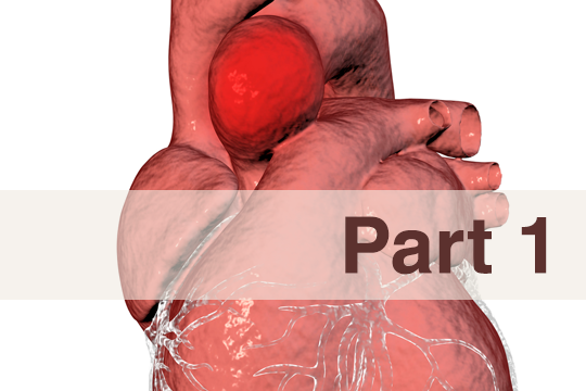 <a href='/the-exchange/thoracic-aortic-aneurysm-part-1-'>Thoracic Aortic Aneurysm (Part 1)</a>