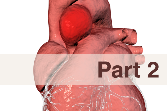 <a href='/the-exchange/thoracic-aortic-aneurysm-part-2-'>Thoracic Aortic Aneurysm (Part 2)</a>