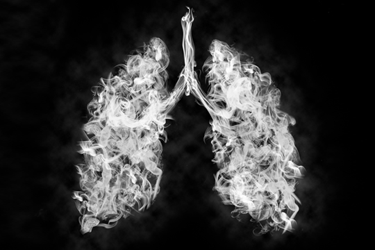 Multi-agency Information for Patients and Providers: e-Cigarette, or Vaping, Product Use Associated Lung Injury (EVALI)